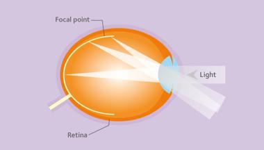 Gestão da miopia versus correção da miopia